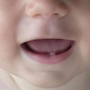 dolore ai dentini