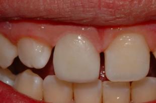 dente da latte