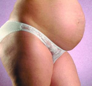 dimagrire gravidanza