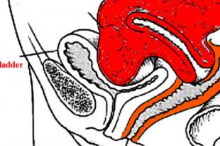 isterectomia