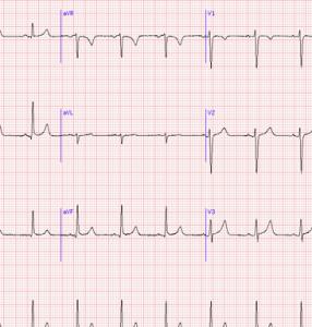 elettrocardiogramma in gravidanza
