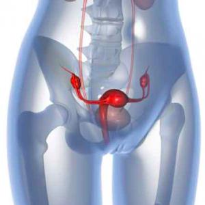 tumore utero