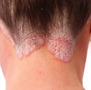 A eczema che gli unguenti usare a