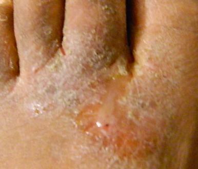 Linfiammazione vicino a ununghia su una gamba che trattare