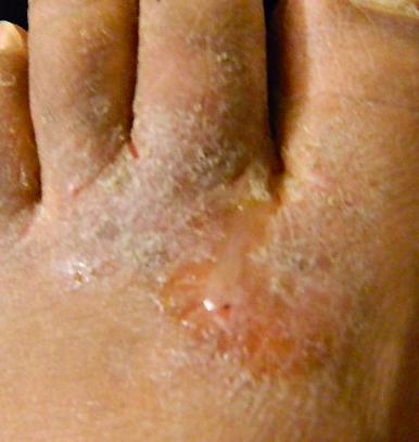 Trattamento di fungo di piede medicine efficaci