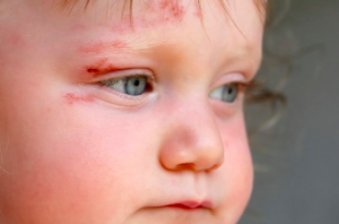 ferita bambino