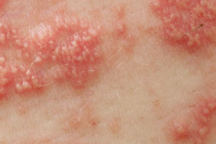 herpes cutaneo