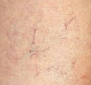 capillari gravidanza
