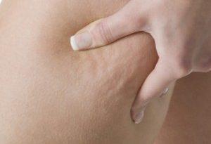 cellulite cause