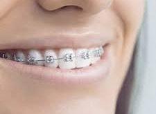 apparecchio ai denti in gravidanza
